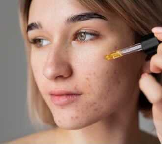 CBD Oil for Acne Does it Work- Feature Image
